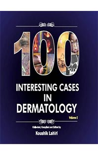 100 cases of Dermatology
